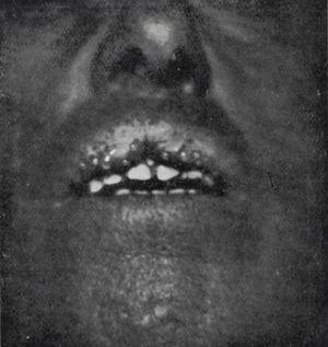 Queilitis glandular, con orificios por los que salen gotitas de saliva.
