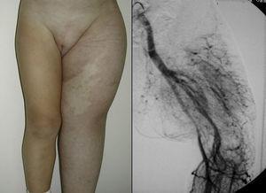 Síndrome Parkes-Weber (hipertrofia generalizada de una extremidad asociada a una MAV).