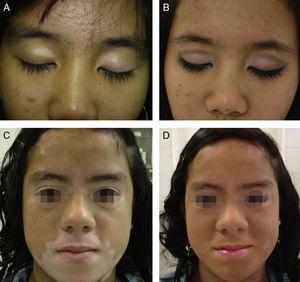 A y B. Vitíligo segmentario antes y después de la sesión de maquillaje corrector. C y D. Vitíligo segmentario antes y después de la sesión de maquillaje corrector.