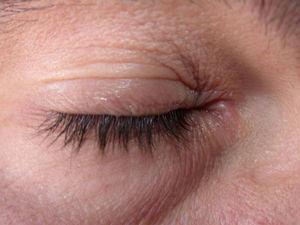 Eccema alérgico de contacto leve de párpados tras aplicación de un producto cosmético.