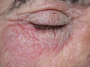 Eccema crónico liquenificado de párpados secundario a la cocamidopropilbetaína presente en un cosmético.