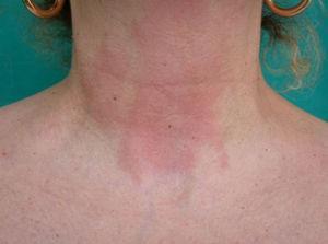 Eccema alérgico de contacto en la región cervical anterior por fragancias.