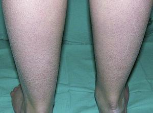 Descamación fina de tono claro en paciente con ictiosis vulgar.