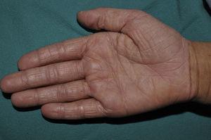 Hiperlinearidad palmar en un niño de 7 años de edad con ictiosis vulgar.