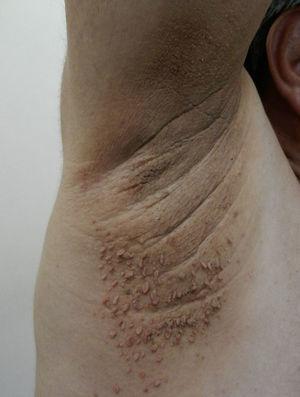 Acrocordones, incontables pápulas pediculadas color piel en la axila de un paciente que presenta adicionalmente acantosis nigricans.