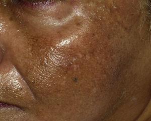 Foto clínica de la hiperpigmentacion parcheada y granular que presenta en la sien izquierda.