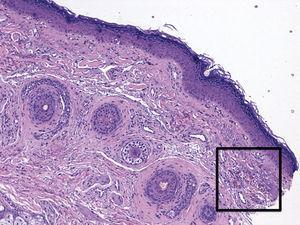 Hematoxilina-eosina ×20.