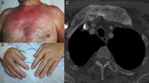 A y B. Lesiones cutáneas clínicamente compatibles con dermatomiositis. C. Ante la sospecha de dermatomiositis paraneoplásica se realizó un estudio de extensión que objetivó un proceso neoplásico de pulmón, en estadio resecable.