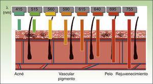 Longitudes de onda (expresadas en nanómetros) empleadas en los sistemas de luz pulsada según el cromóforo diana.