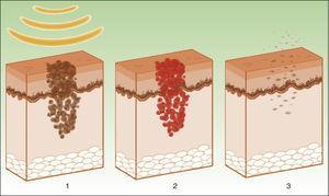 Mecanismo de acción de la luz pulsada intensa en las lesiones pigmentadas19. Los melanosomas absorben las λ (1), las transforman en energía calórica (2) y se produce epidermólisis y eliminación de la lesión (3).