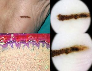 (A) One melanoma in situ was found among the 9 reported lineal nevi. (B) Histological study of the lesion was consistent with melanoma in situ (H–E×10). (C, D) The lesion showed a characteristic dermoscopic parallel ridge pattern.