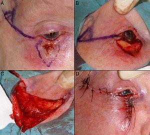 A. Carcinoma epidermoide que produce retracción y provoca ectropión. B. Resección V-bloque de espesor total con defecto mayor de ½ párpado inferior. C. Cantolisis y colgajo de avance. D. Sutura con seda 4/0 y 5/0, con cabos largos en el párpado inferior que evitan el roce con la córnea. Edema y hematoma en el párpado e hiposfagma (hemorragia subconjuntival).