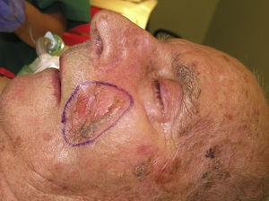 Carcinoma espinocelular de gran tamaño en área malar.