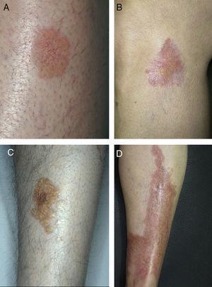 Lesiones típicas de necrobiosis lipoídica en las extremidades inferiores, con predominio de telangiectasias (A, B), coloración amarillenta (C) y atrofia (D).