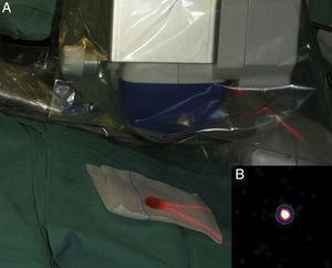 A. Toma de imágenes ex vivo mediante gammacámara portátil sobre el ganglio centinela disecado. B. Imagen de confirmación de ganglio centinela.
