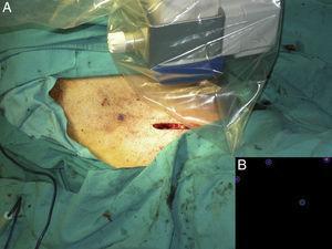 A. Toma de imágenes en el lecho quirúrgico mediante gammacámara portátil para verificación de disección completa de ganglios centinelas. B. Imagen que muestra ausencia de actividad y confirma disección completa.