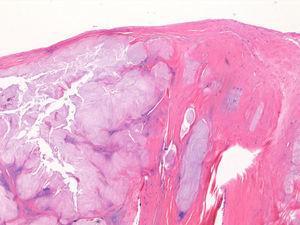 Estudio histológico. Hematoxilina-eosina: tejido fibrotendinoso con cartílago maduro (aumento ×10).