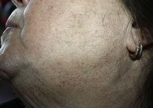 Hirsutismo a nivel del mentón y de las regiones laterales de la cara y del cuello.