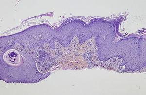 Hematoxilina-eosina, ×4.