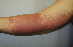 Lesiones maculosas eritematosas con morfología en diana en antebrazo.