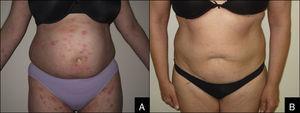 EICH cutánea crónica liquenoide antes (A) y después (B) del tratamiento con fototerapia.