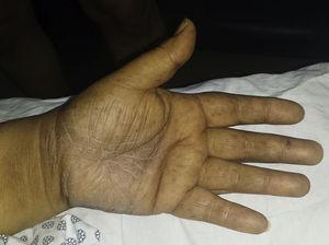 Máculas hiperpigmentadas múltiples en zona palmar de mano izquierda.