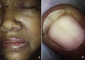 a) Imagen izquierda, máculas hiperpigmentadas en cara, labio superior e inferior. b) Imagen derecha, melanoniquia en mano, visión dermatoscópica.