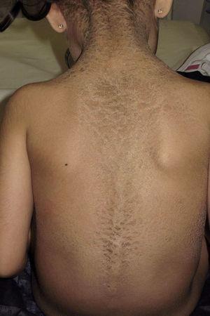 Gruesas escamas oscuras en el dorso del tronco dibujando el trayecto vertebral.