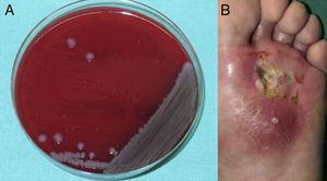 A) Crecimiento de colonias de Vibrio alginolyticus en medio agar sangre. B) Úlcera cutánea en planta del pie izquierdo sobre un área de radiodermitis crónica con formación de absceso.
