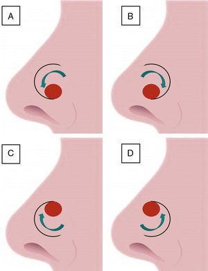 Pedículo superior: A) Rotación lateral. B) Rotación medial. Pedículo inferior: C) Rotación lateral. D) Rotación medial.
