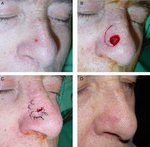 A) Carcinoma basocelular en el lateral nasal. B) Colgajo de pedículo superior labrado en el plano subcutáneo. C) Colgajo rotado perpendicularmente al dorso nasal. D) Resultado a los 8 meses.