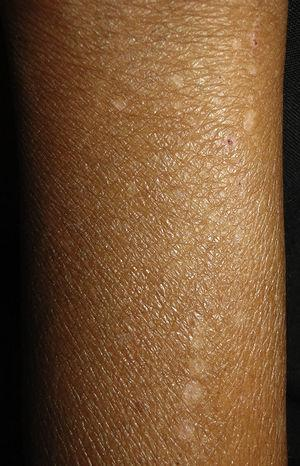 Xerotic skin with excoriations marks secondary to renal pruritus.
