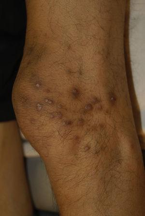 Acquired perforating dermatosis. Pigmented and umbilicated dome shape papules with scaling centre. Image supplied by National Institute of Medical Science and Nutrition Salvador Zubiran.