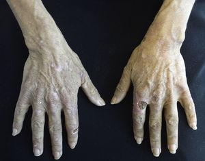Porphyria cutanea tarda. Erosions and crusts on the back of the hands. Image supplied by National Institute of Medical Science and Nutrition Salvador Zubiran.