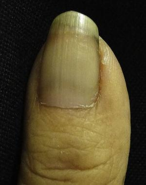 Half and Half nail. A white proximal area and a red-brown distal area are observed.