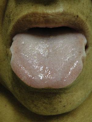 Macroglossia. An enlarged tongue framed in its edge by teeth, pallor is also observed in the perioral skin.