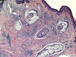 Porción correspondiente al nevo melanocítico intradérmico, con nidos de melanocitos típicos, así como pigmento melánico en dermis superficial (H&E, ×10).