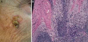 Imagen clínica de un CEC bien diferenciado en la región malar (A) e imagen histológica del mismo tumor (B) (hematoxilina-eosina×10).