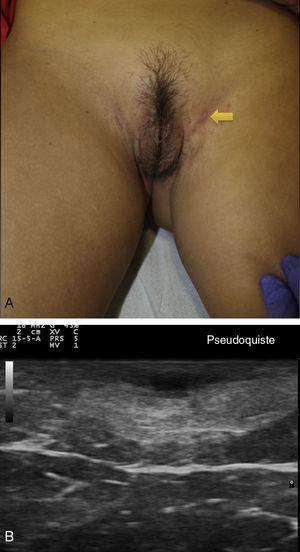 Hidradenitis supurativa. A. Imagen clínica de lesión papular inflamada. B. Imagen ecográfica de pseudoquiste inflamatorio.