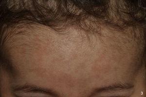 Máculas hiperpigmentadas en región frontotemporal en niña de origen sudamericano de un año.