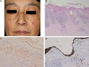 (A) Multiple keratotic plaques scattered on the face. (B) Biopsy showed parakeratosis with focal hyperkeratosis, follicular plugging, liquefaction changes to the basal layers of the epidermis, and cellular infiltrates in the upper dermis (hematoxylin–eosin stain, original magnification 100×). (C) Dylon staining revealed amyloid deposition in the upper dermis (original magnification 200×). (D) The upper dermis was also positive for keratin (original magnification 200×).