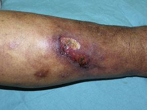 Úlcera cutánea acompañada de livedo racemosa secundaria a calcifilaxis.