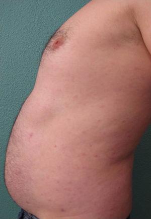 Resolución del cuadro y lesiones residuales tras 6 semanas de tratamiento asociando metotrexato 15mg/semana+adalimumab 40mg/2 semanas.