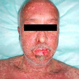 Placas eritemato-edematosas con áreas de despegamiento cutáneo y lesiones erosivas en semimucosa labial.
