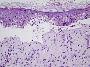 Desprendimiento y necrosis epidérmica con queratinocitos disqueratósicos e infiltrado inflamatorio linfocítico (H&E ×10).