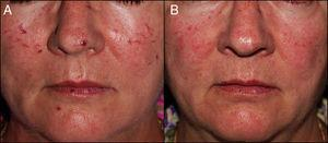 A) Paciente del caso 2: Telangiectasias mucocutáneas en nariz, ambas mejillas y labios. B) Gran aclaramiento de las lesiones tras 4 sesiones de tratamiento.