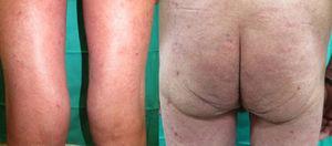 Mejoría clínica tras 3 meses de tratamiento con acitretino a pesar de nuevas infusiones de pembrolizumab.