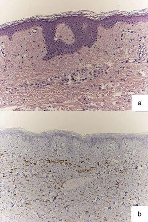 Estudio histológico: a) infiltrado dérmico de células en hilera por adenocarcinoma lobulillar de mama (H&E ×20); b) Grupos de células positivas que indican procedencia de tejido mamario, inmunohistoquímica: GCDFP-15 (×20).