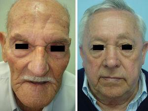 Buenos resultados cosméticos del colgajo paramediofrontal. Presencia de cicatriz frontal secundaria.