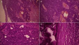 A) (H&E ×4) y B) (H&E ×10): nódulos de células epiteliales, que el algunas áreas, muestran una población de células ubicadas en la periferia, de aspecto basaloide. C) (H&E ×40) y D) (H&E ×40): células con citoplasma claro y escaso, que delimitan luces glandulares tubulares; en otras zonas, las células muestran menos diferenciación, con predominio claro de células basaloides, hipercromáticas y con escaso citoplasma, sin formación de estructuras ductales y con mitosis; se muestra calcificación. El estroma exhibe edema y canales vasculares dilatados y congestivos.